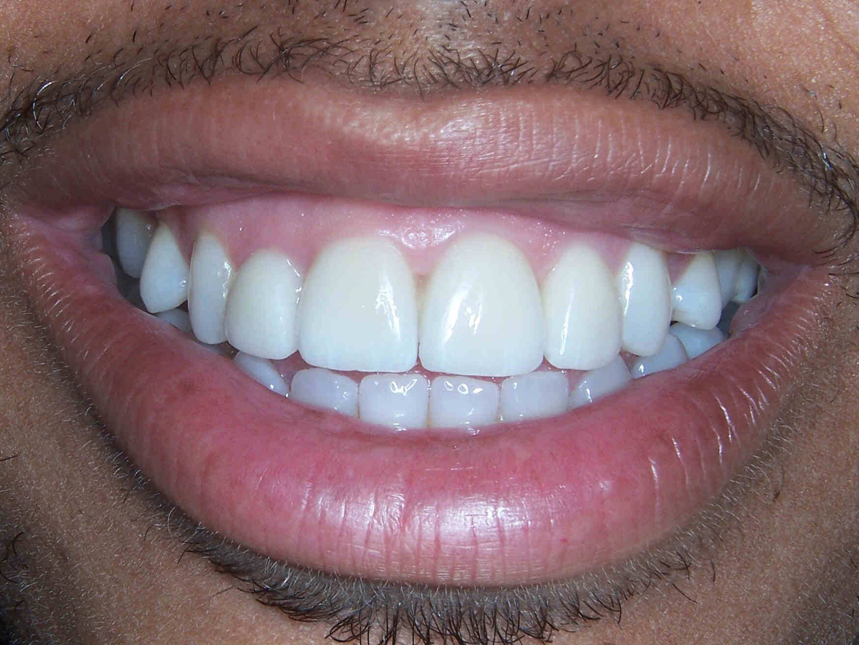 Before and After Dental Crowns & Smile Makeover Photos