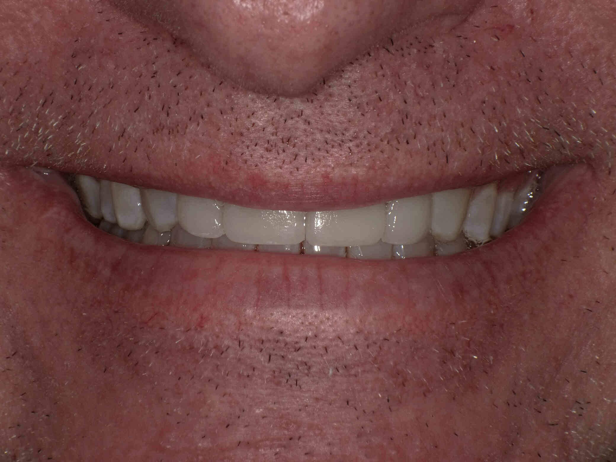 Orthodontics & Veneers After