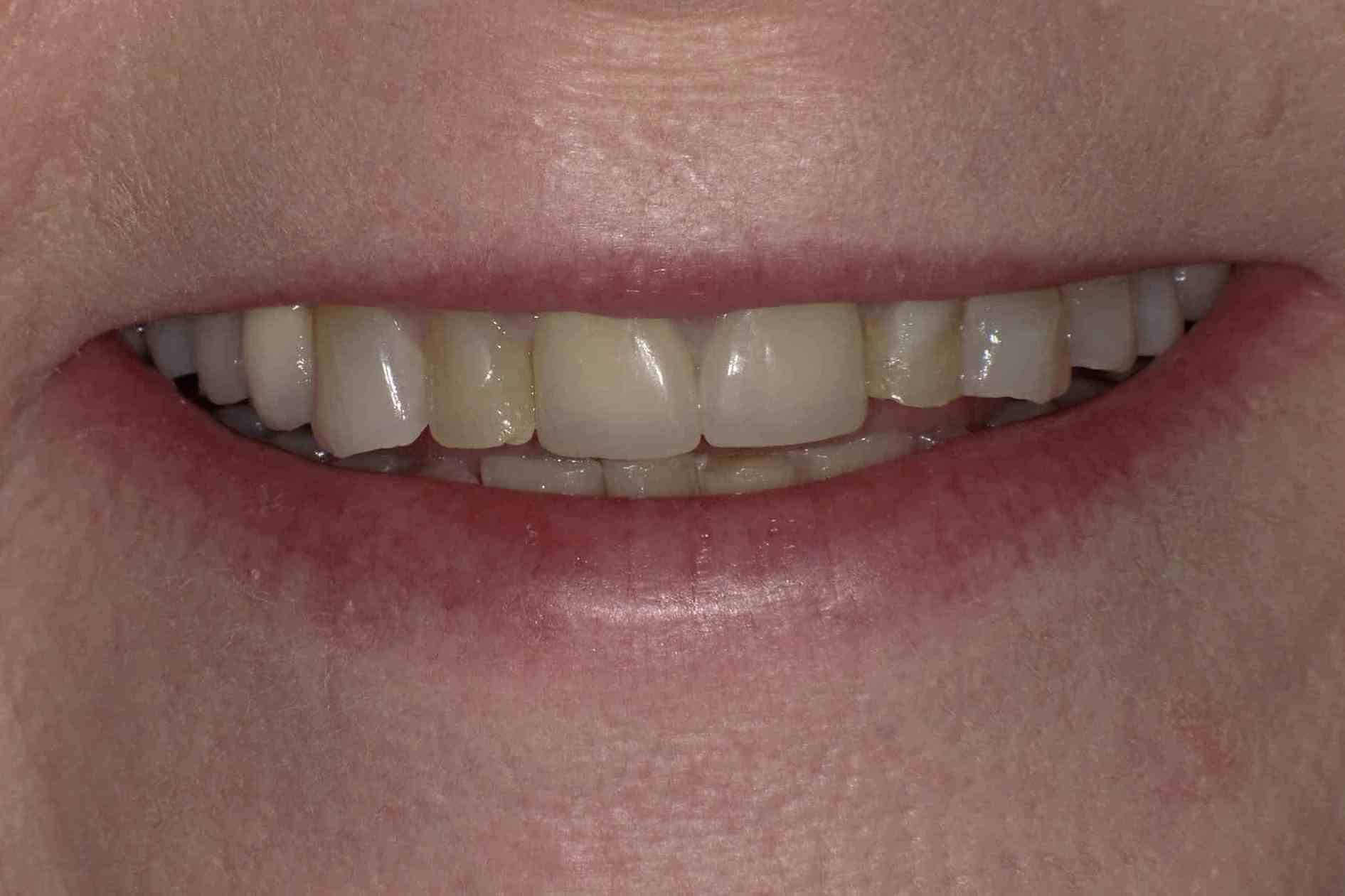 Crowns, Veneers & Bonding Before