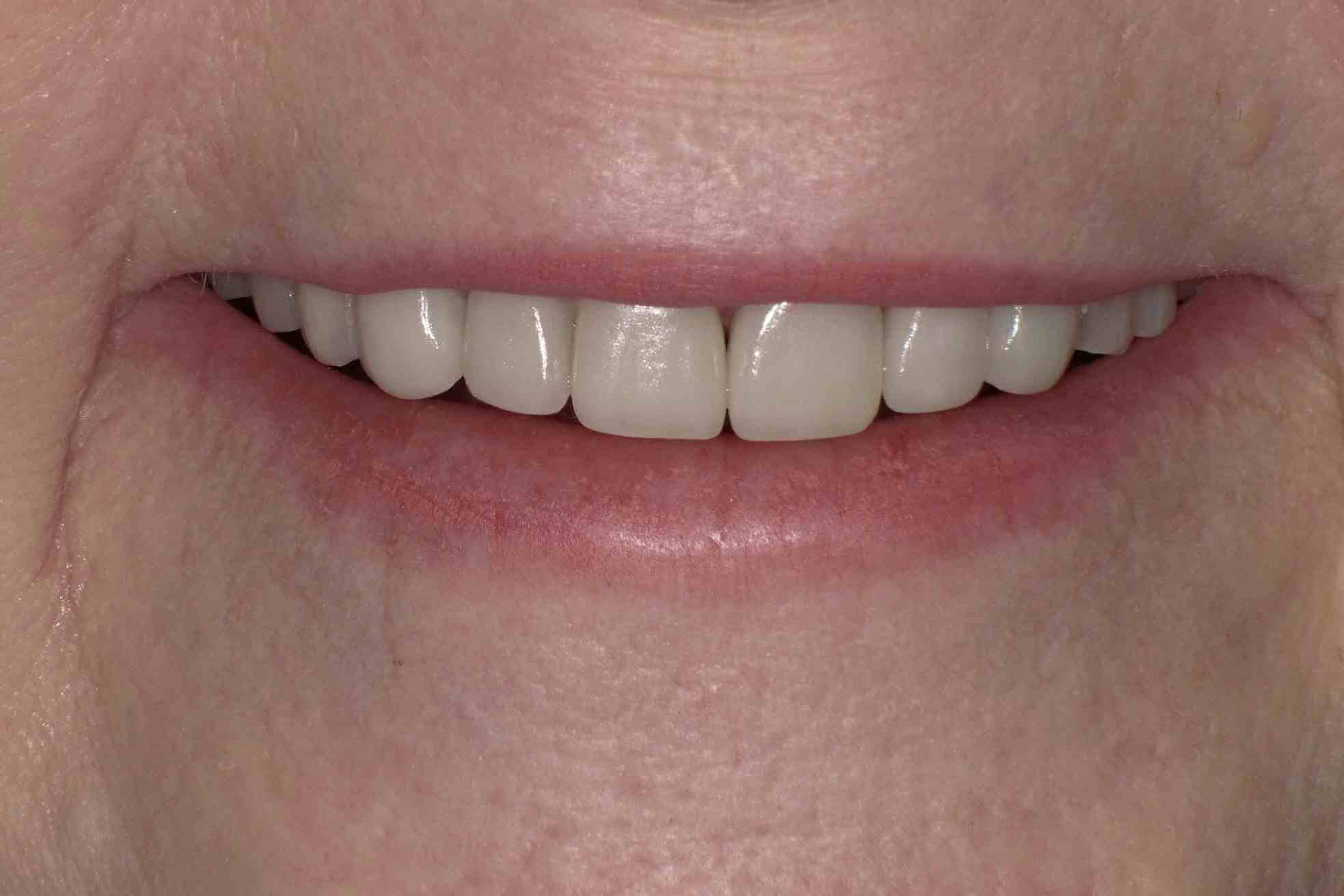 Crowns, Veneers & Bonding After