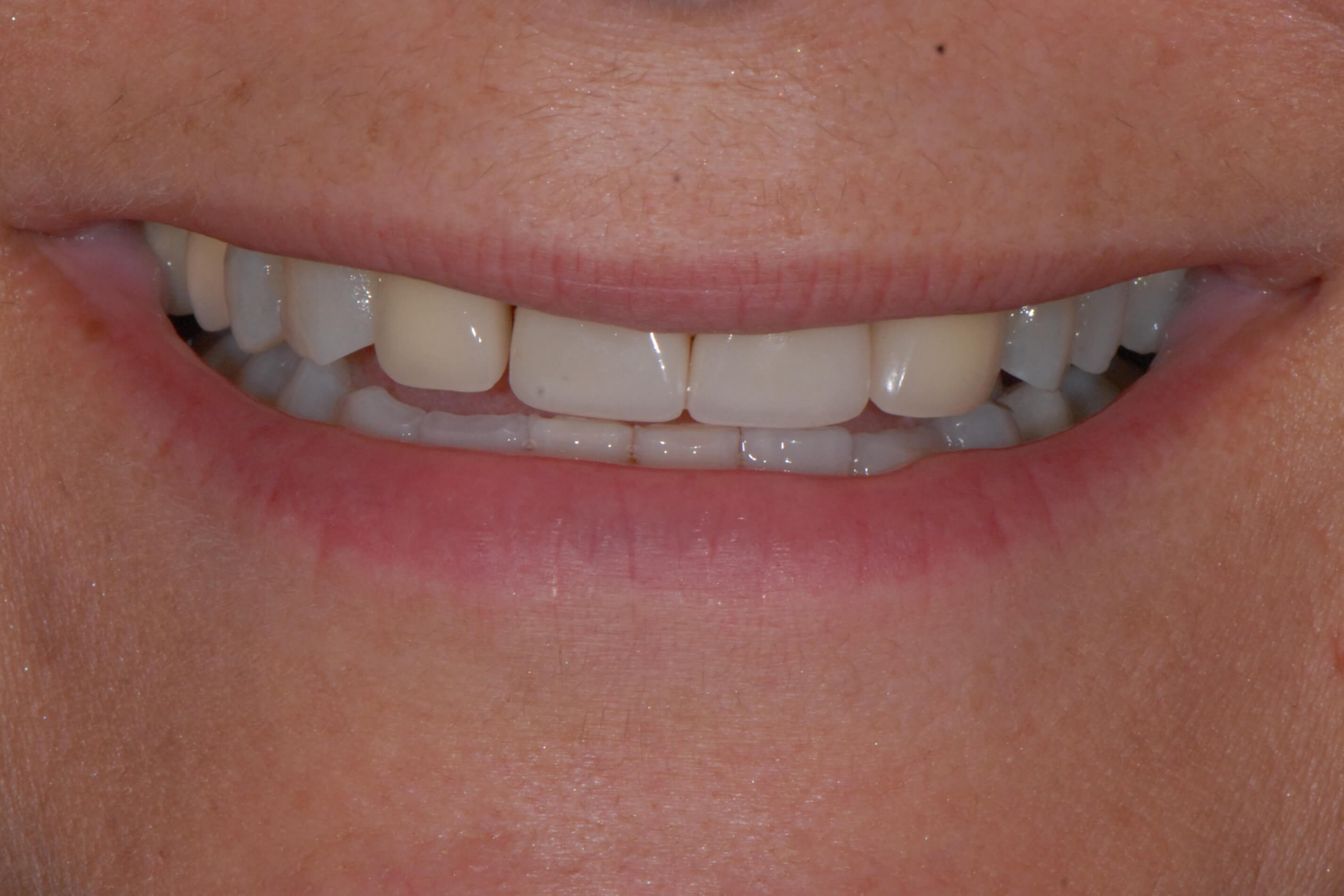 All Porcelain Crowns Before