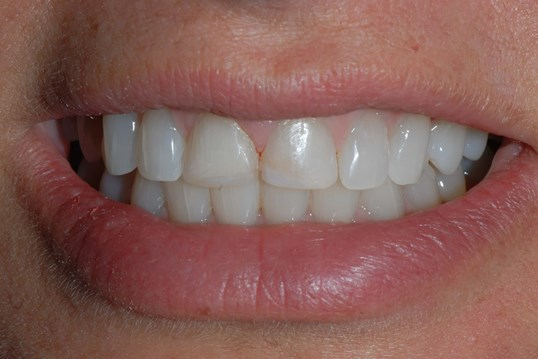 Veneers and Gum Lifting Before