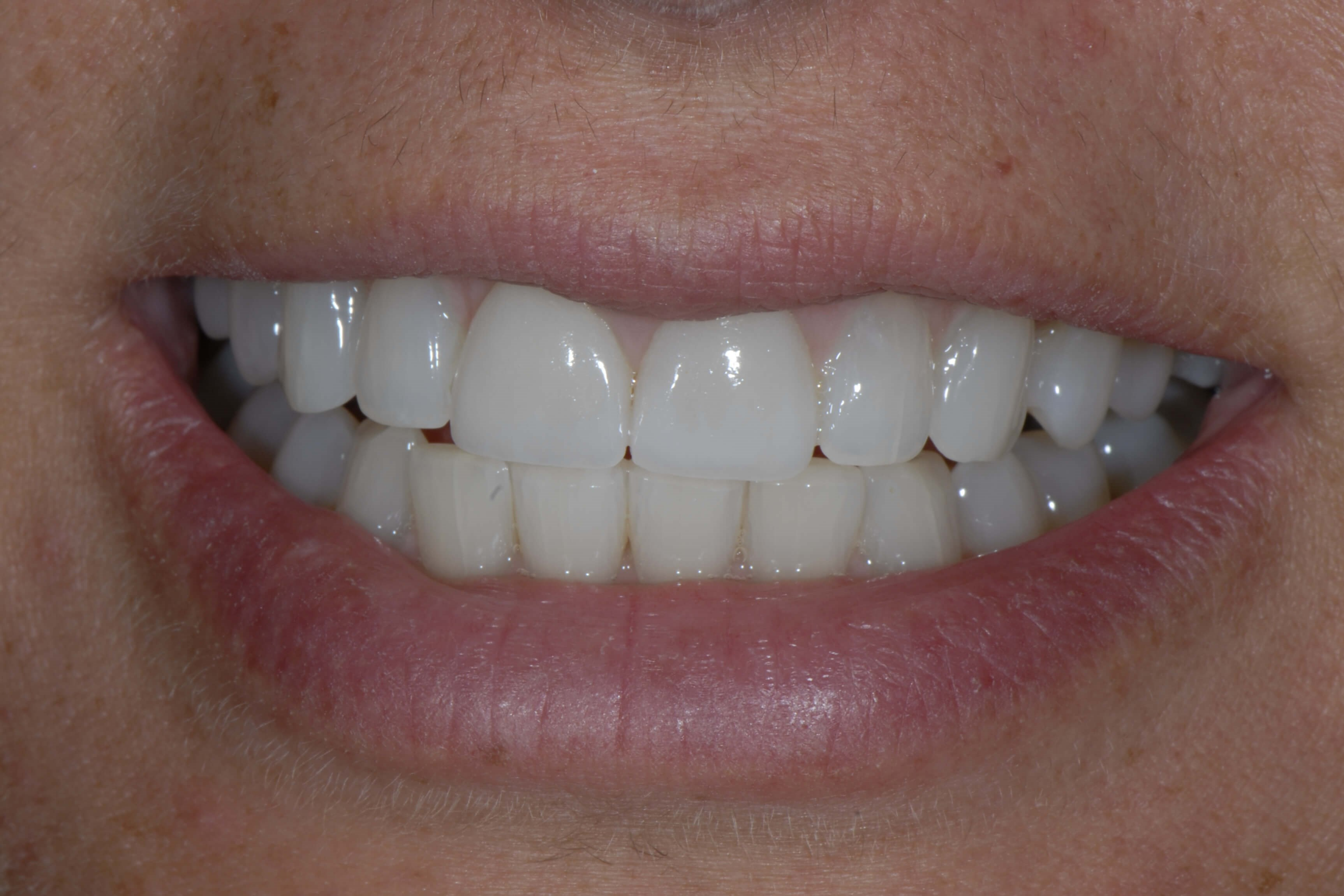 Veneers and Gum Lifting After