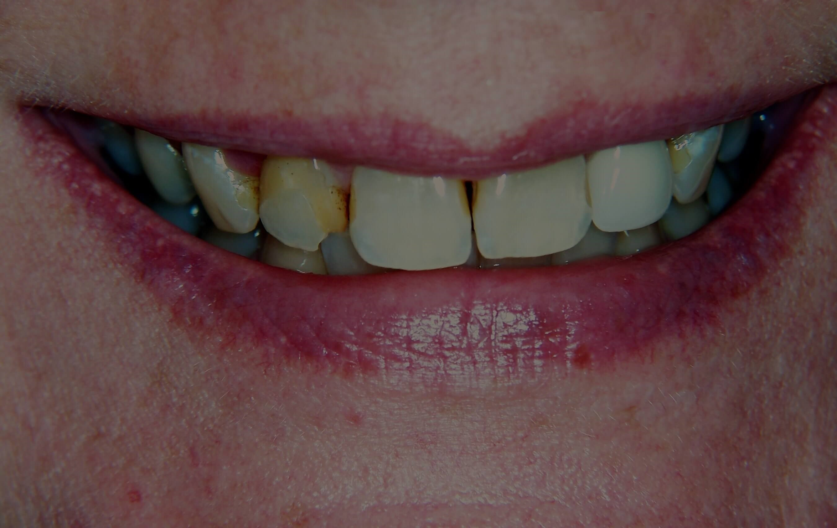 Dental Crowns and Veneers Before