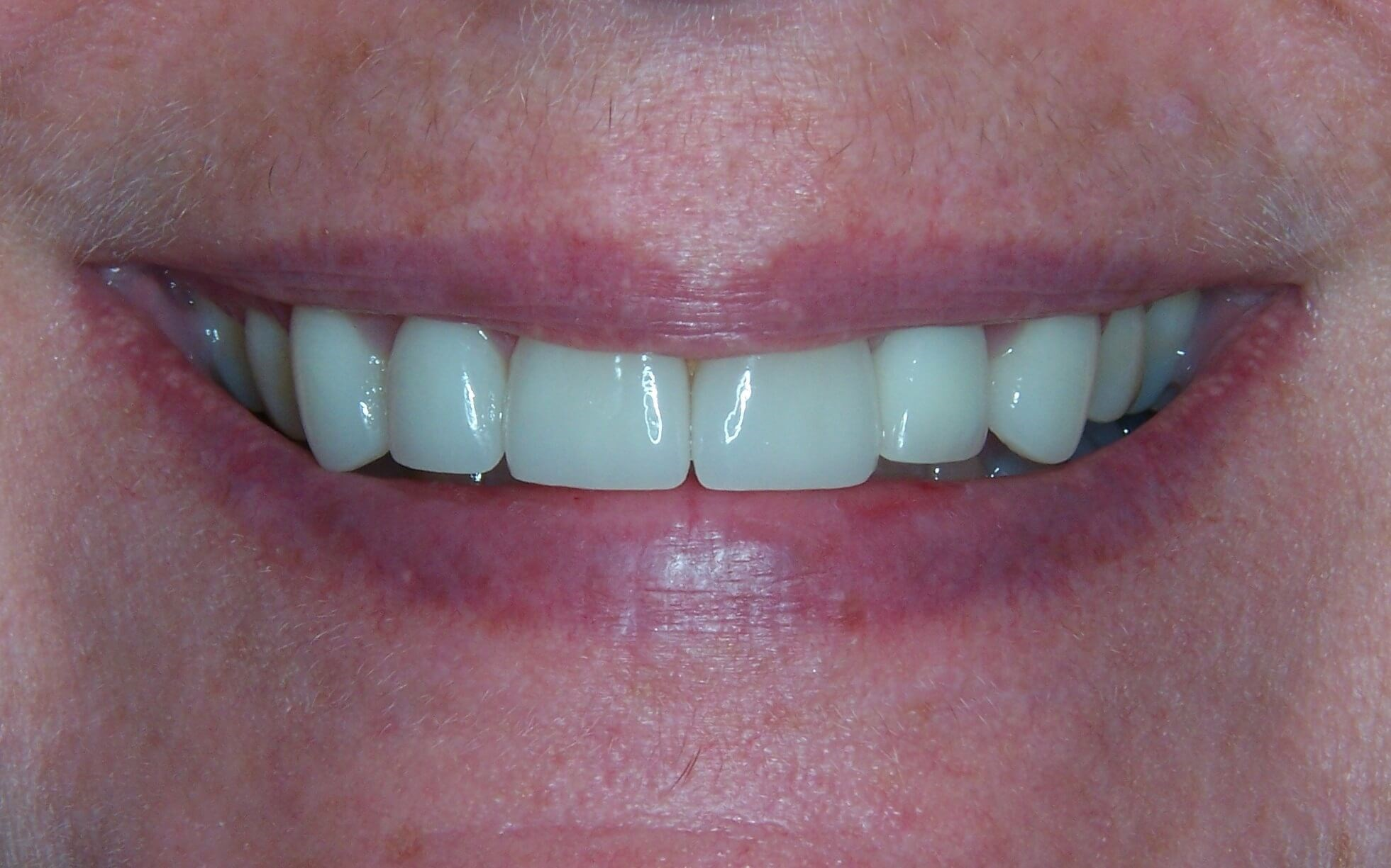 Dental Crowns and Veneers After