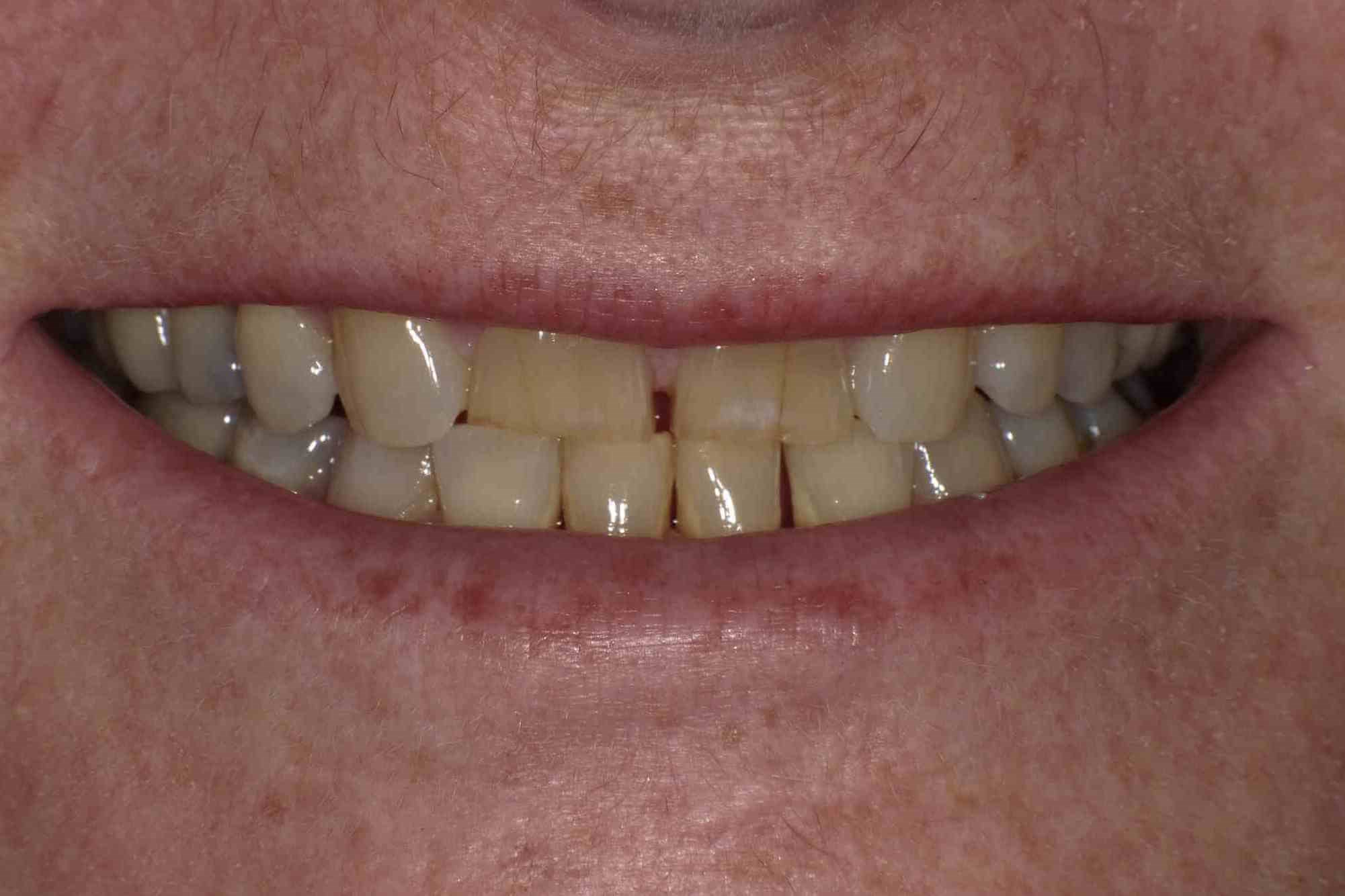 A Smile Transformed! Before