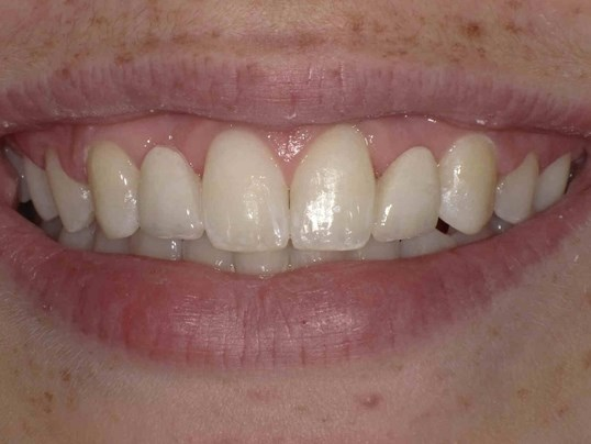 Dental Encore Bridges After
