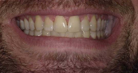 Zoom Whitening Before