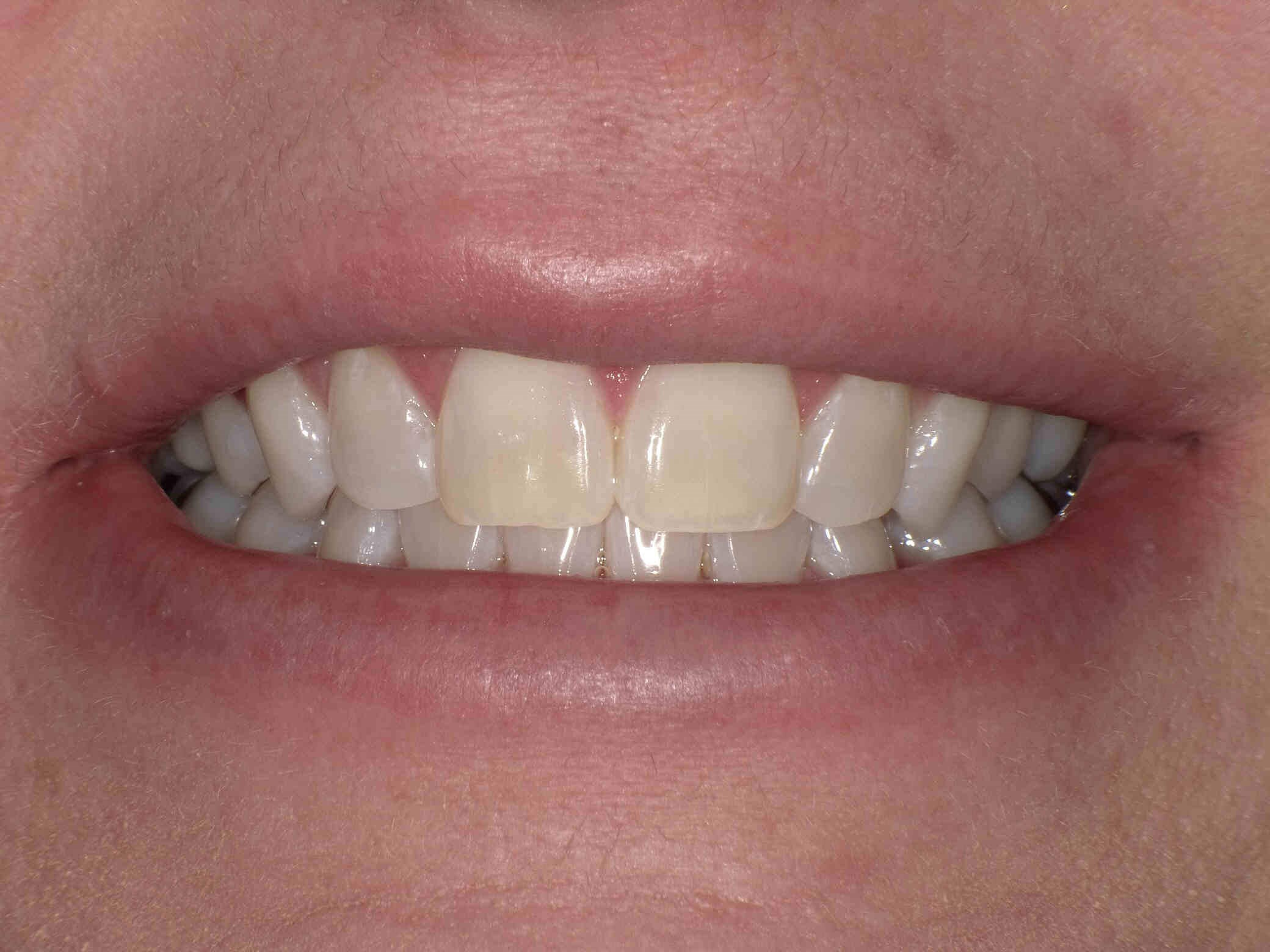 Zoom Whitening After