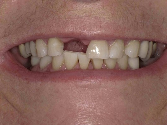 Dental Bridge and Crowns Before