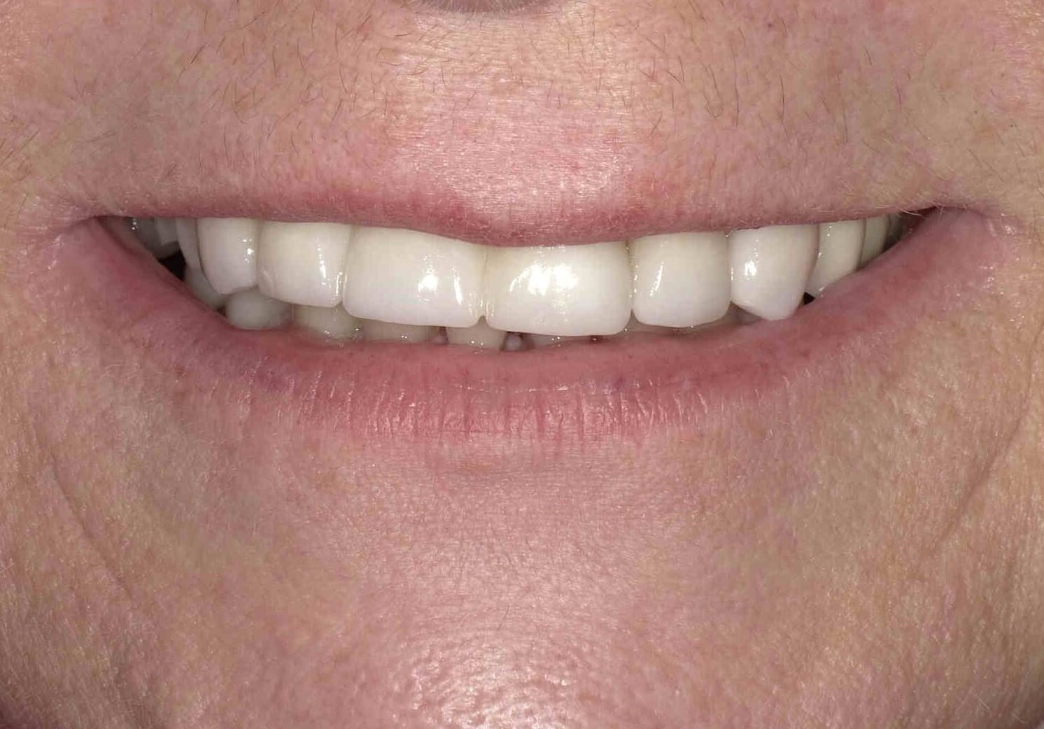 Dental Bridge and Crowns After