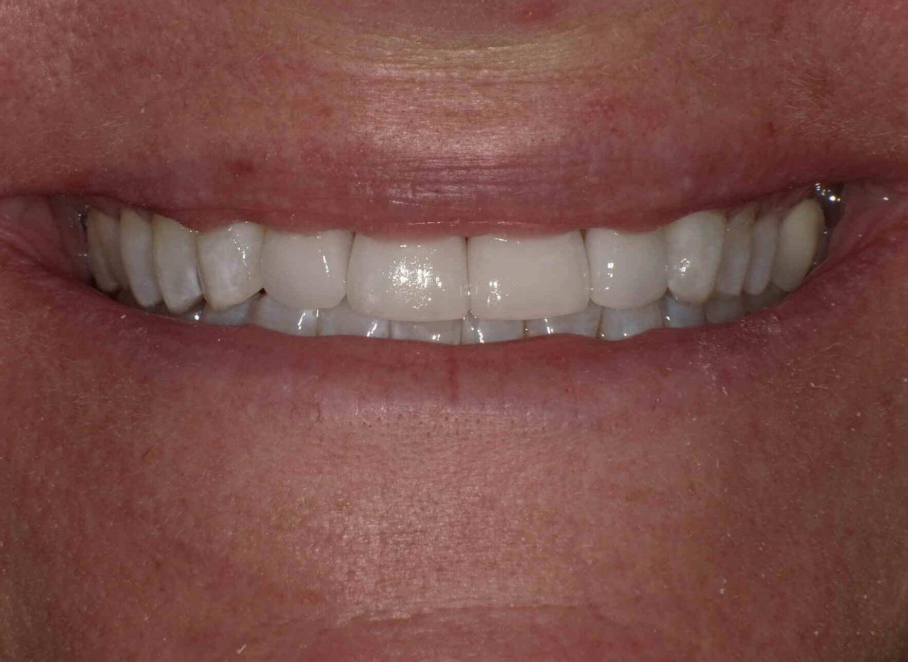 Porcelain  Veneers & Whitening After