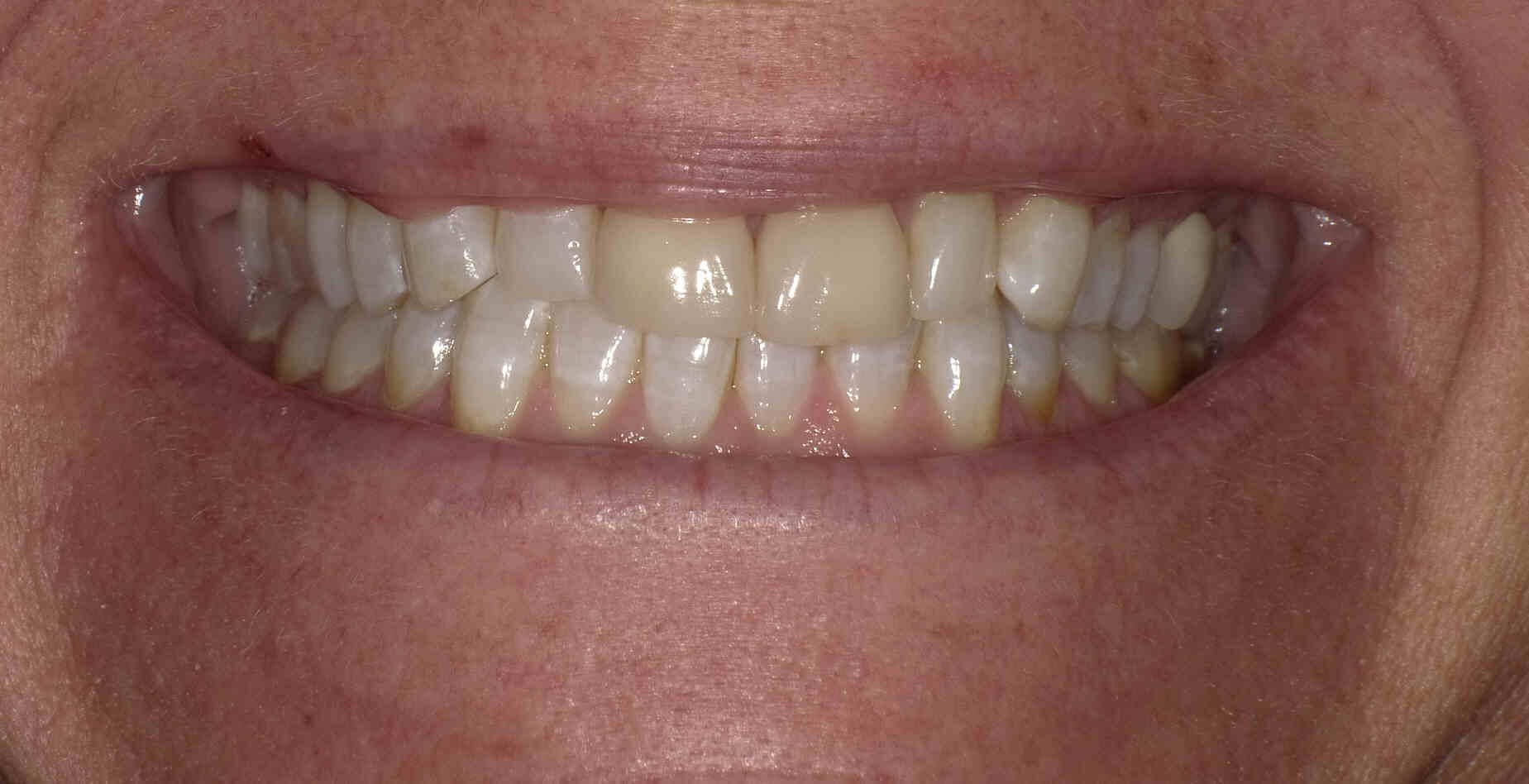 Porcelain  Veneers & Whitening Before