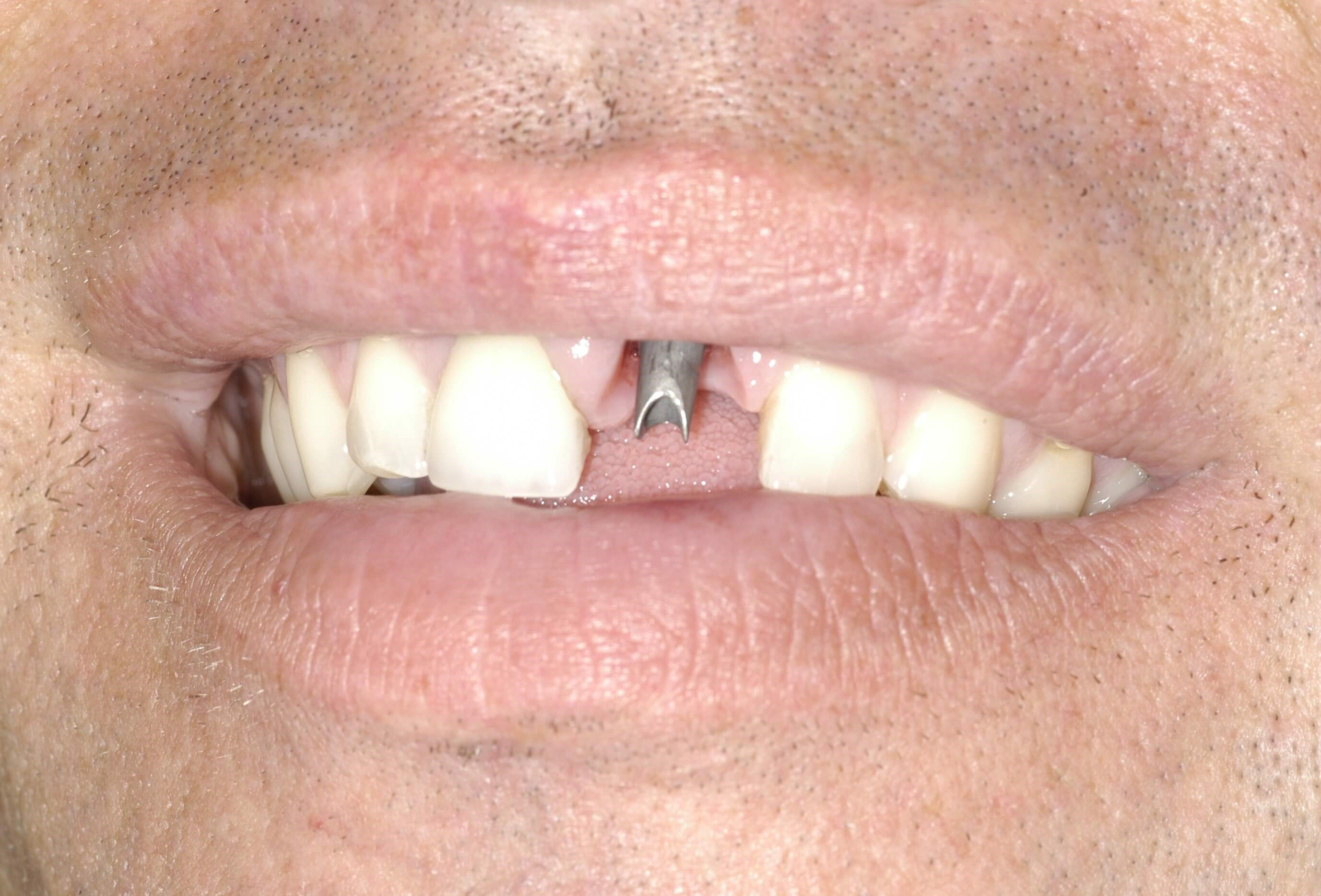 Dental Implant Before