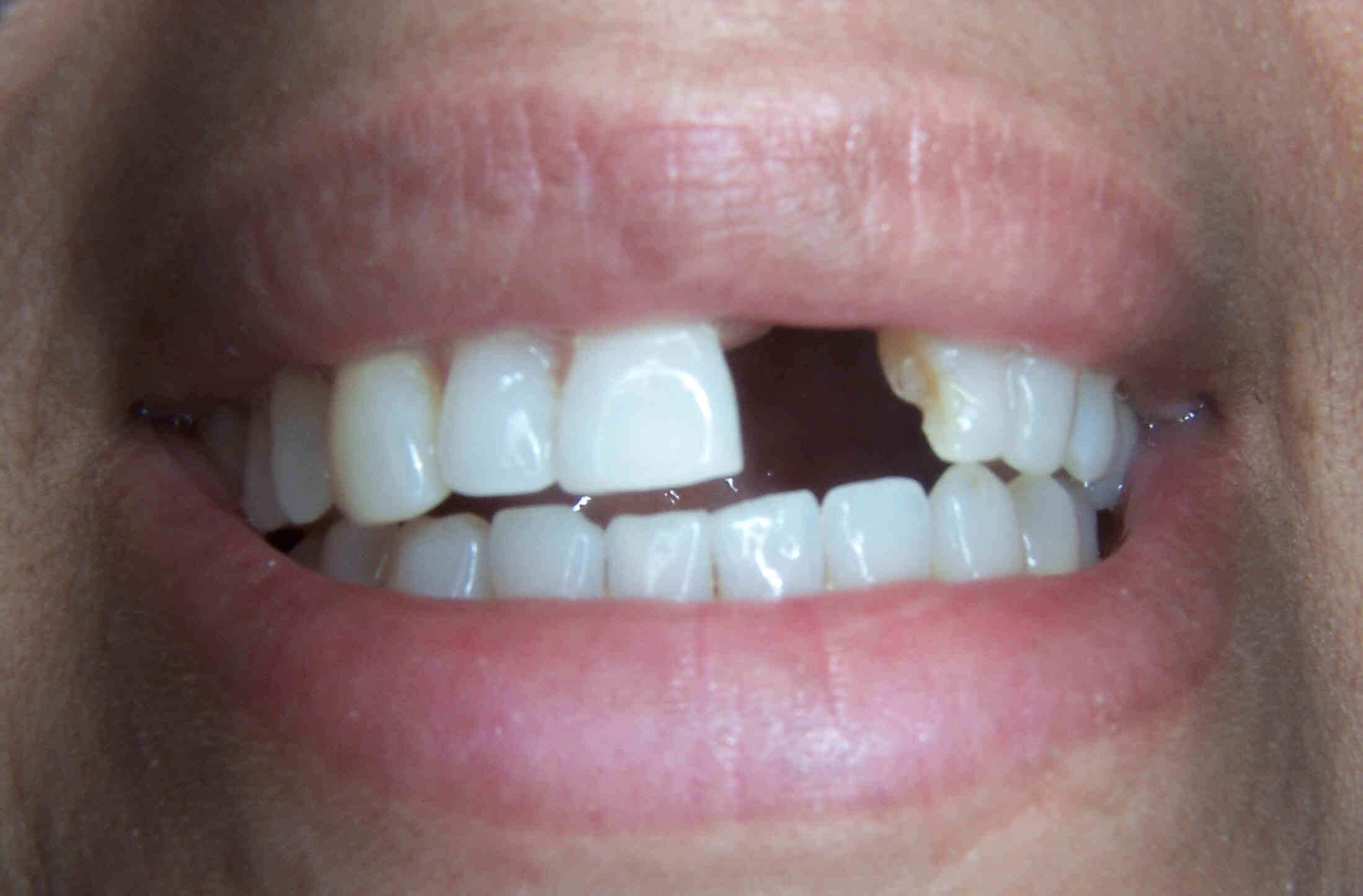 Dental Bridge in Atlanta, Ga Before