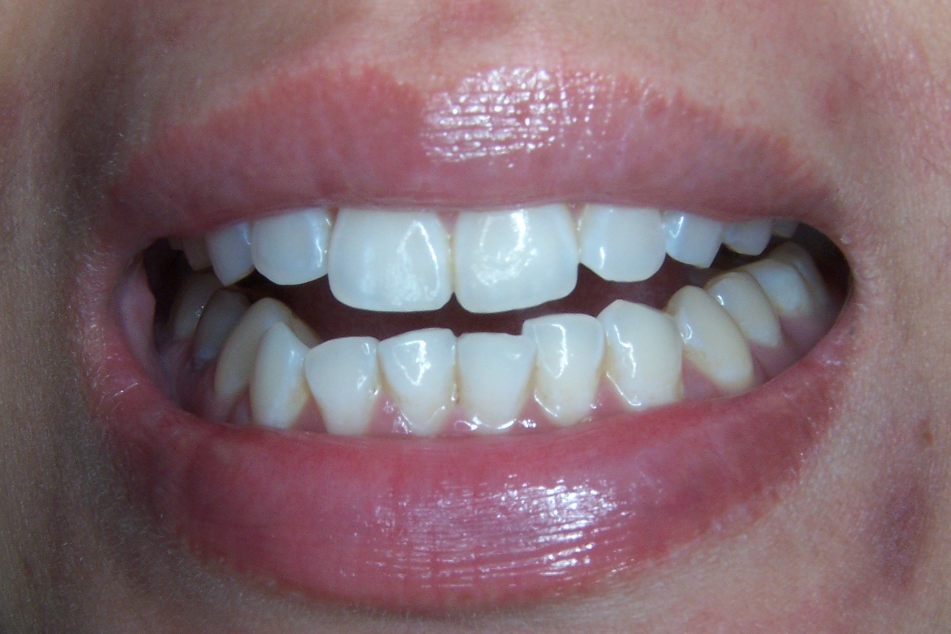Cosmetic Tooth Contouring Before