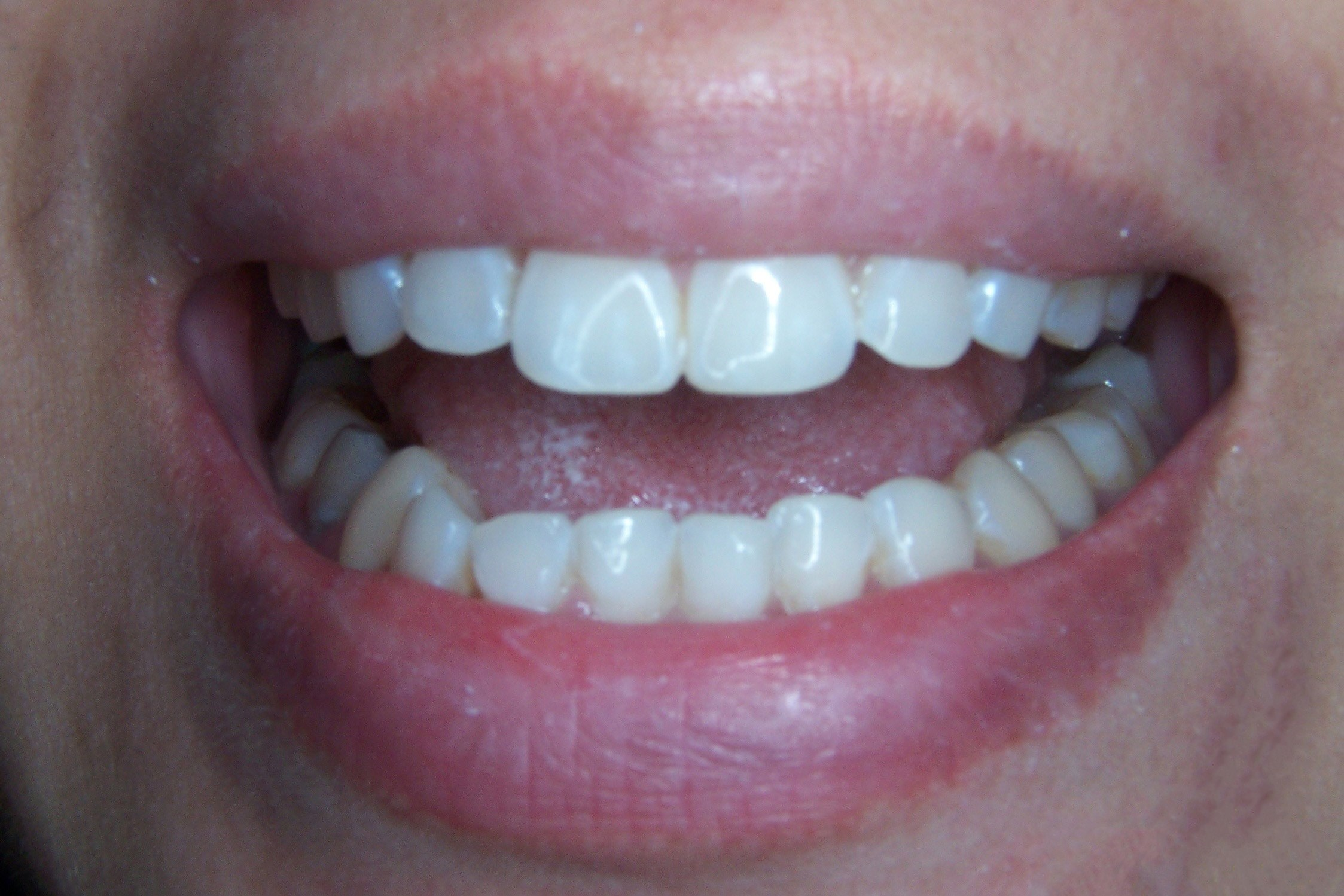 Cosmetic Tooth Contouring After