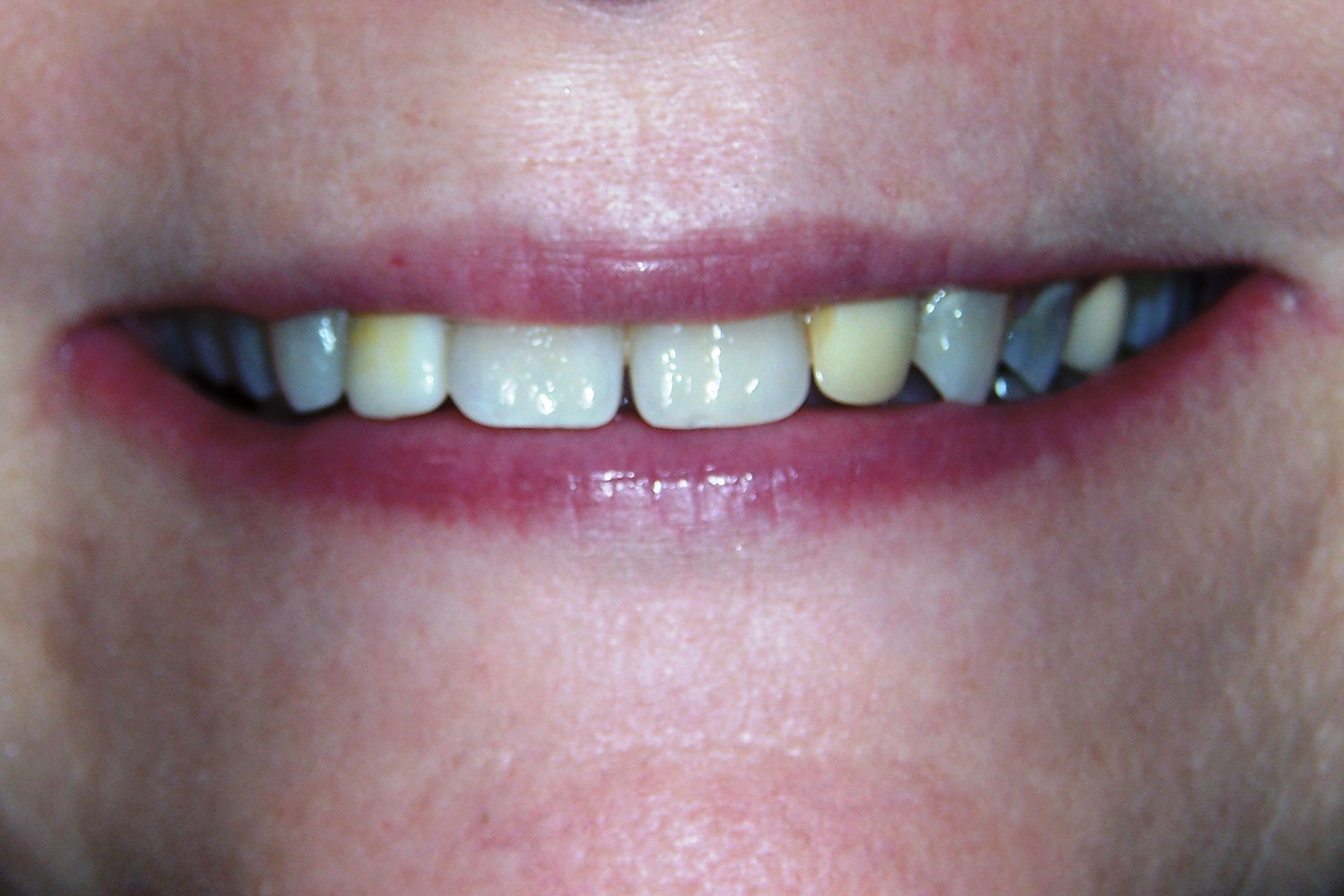 Porcelain Crowns & Veneers Before