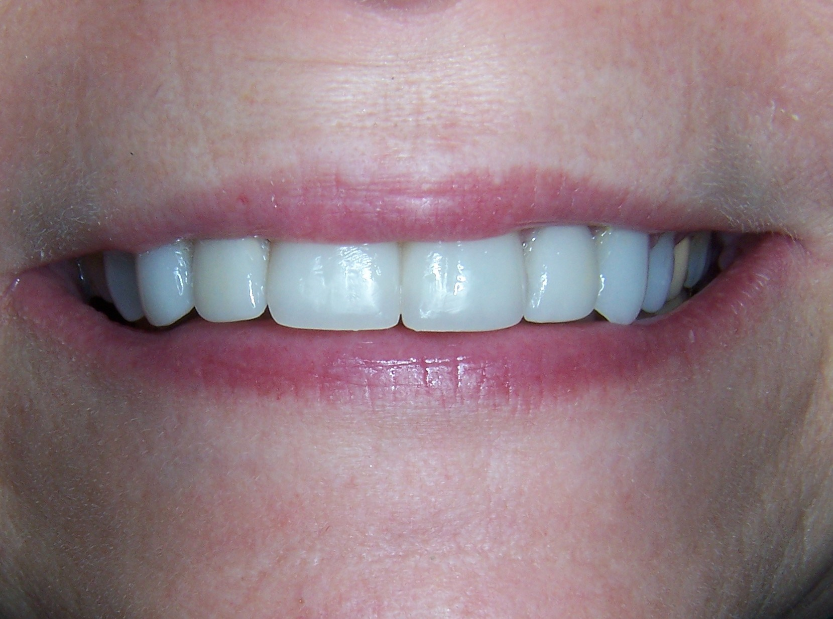 Porcelain Crowns & Veneers After