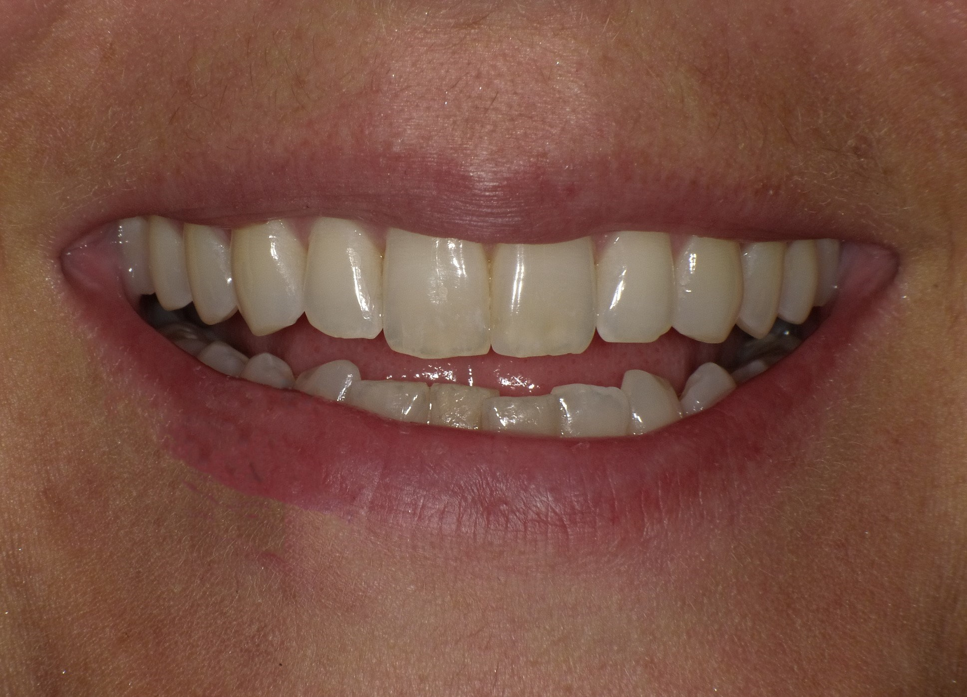Clear Correct Orthodontics Before