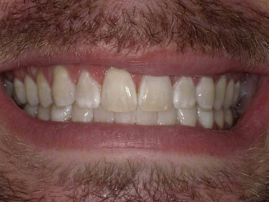 Before And After Zoom Laser Teeth Whitening Photos
