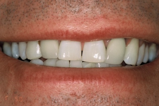 Porcelain Veneers & Crowns Before