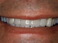 Porcelain Veneers & Crowns After