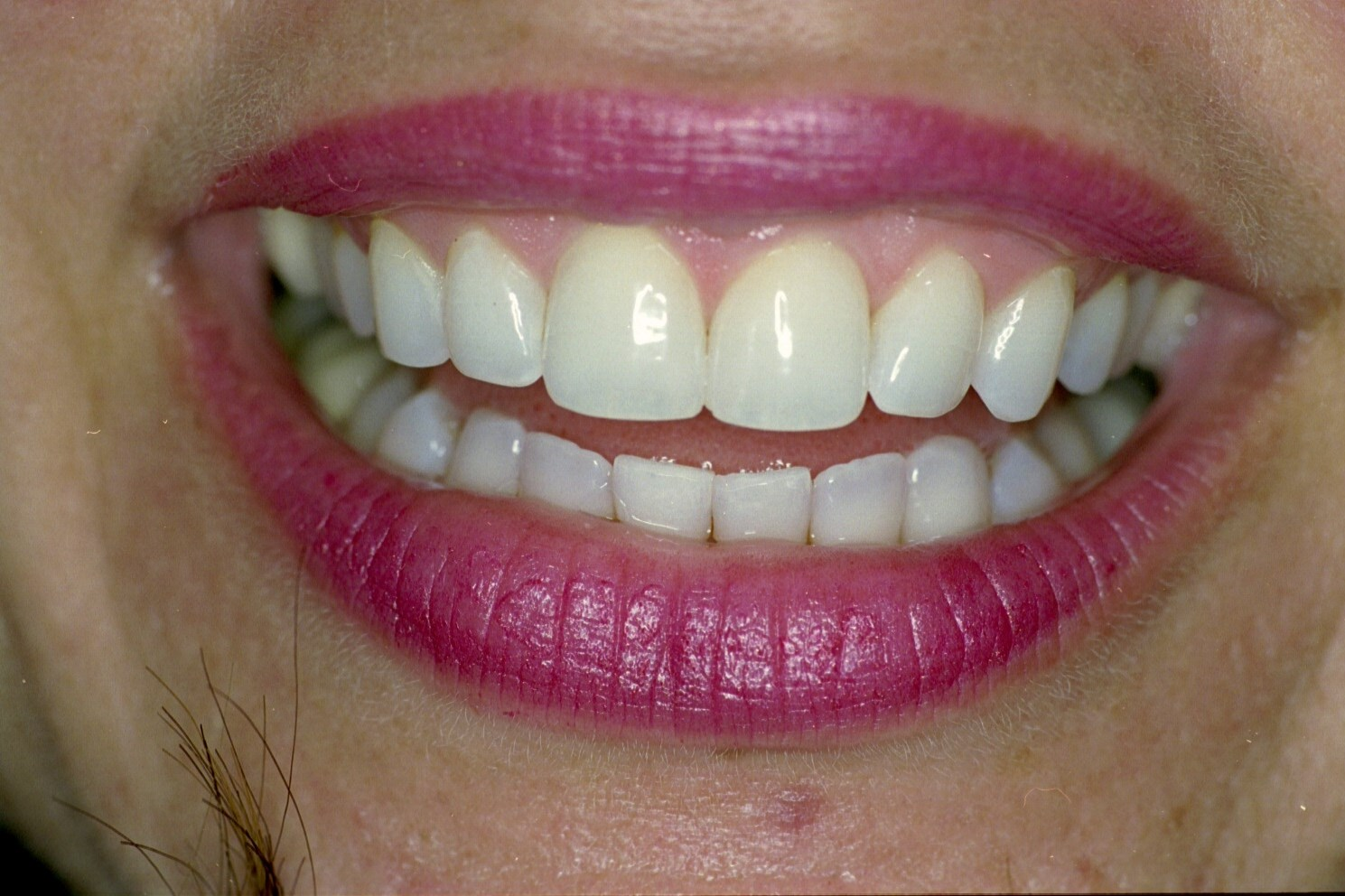 Zoom! Teeth Whitening Before