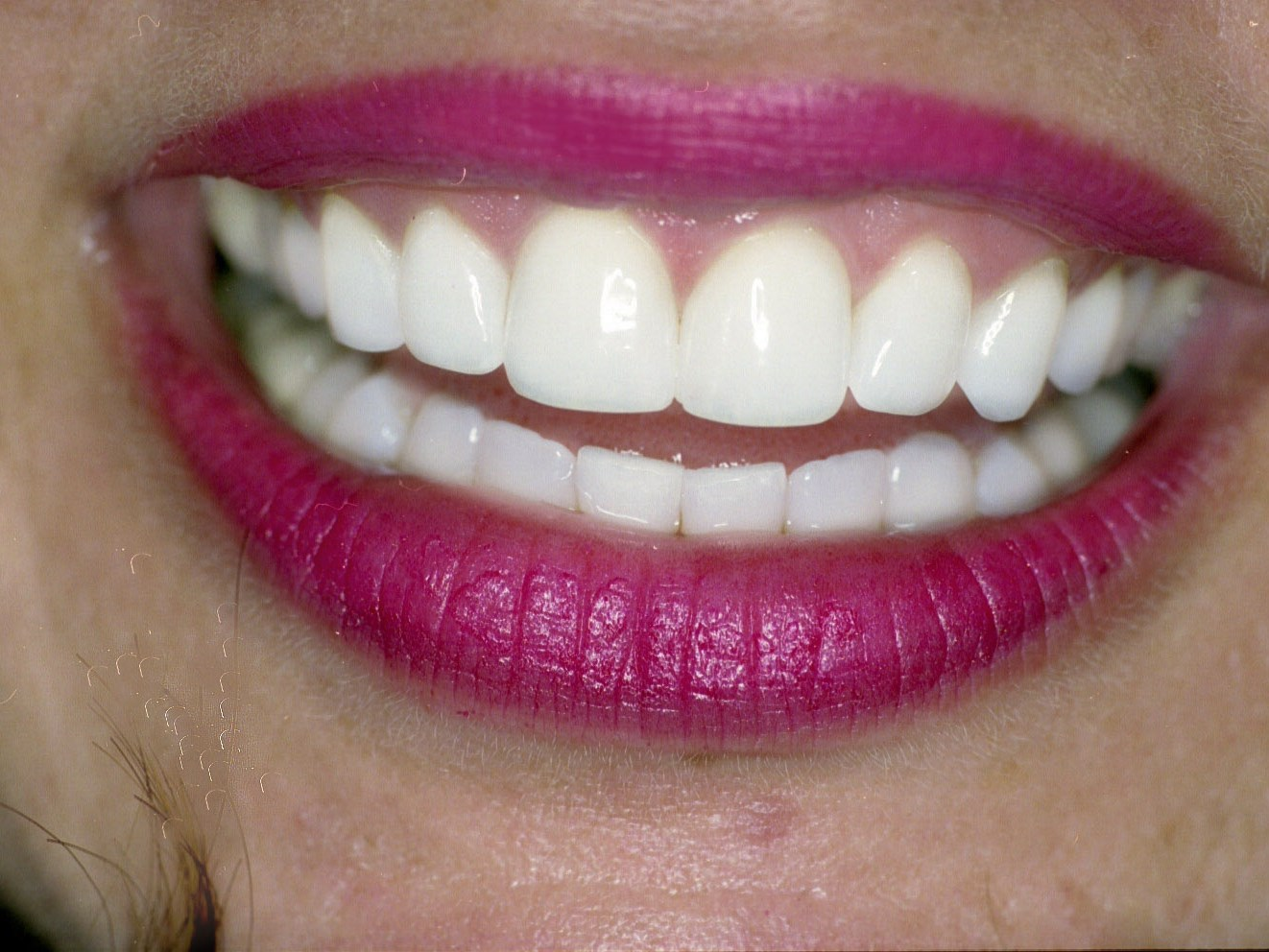 Zoom! Teeth Whitening After