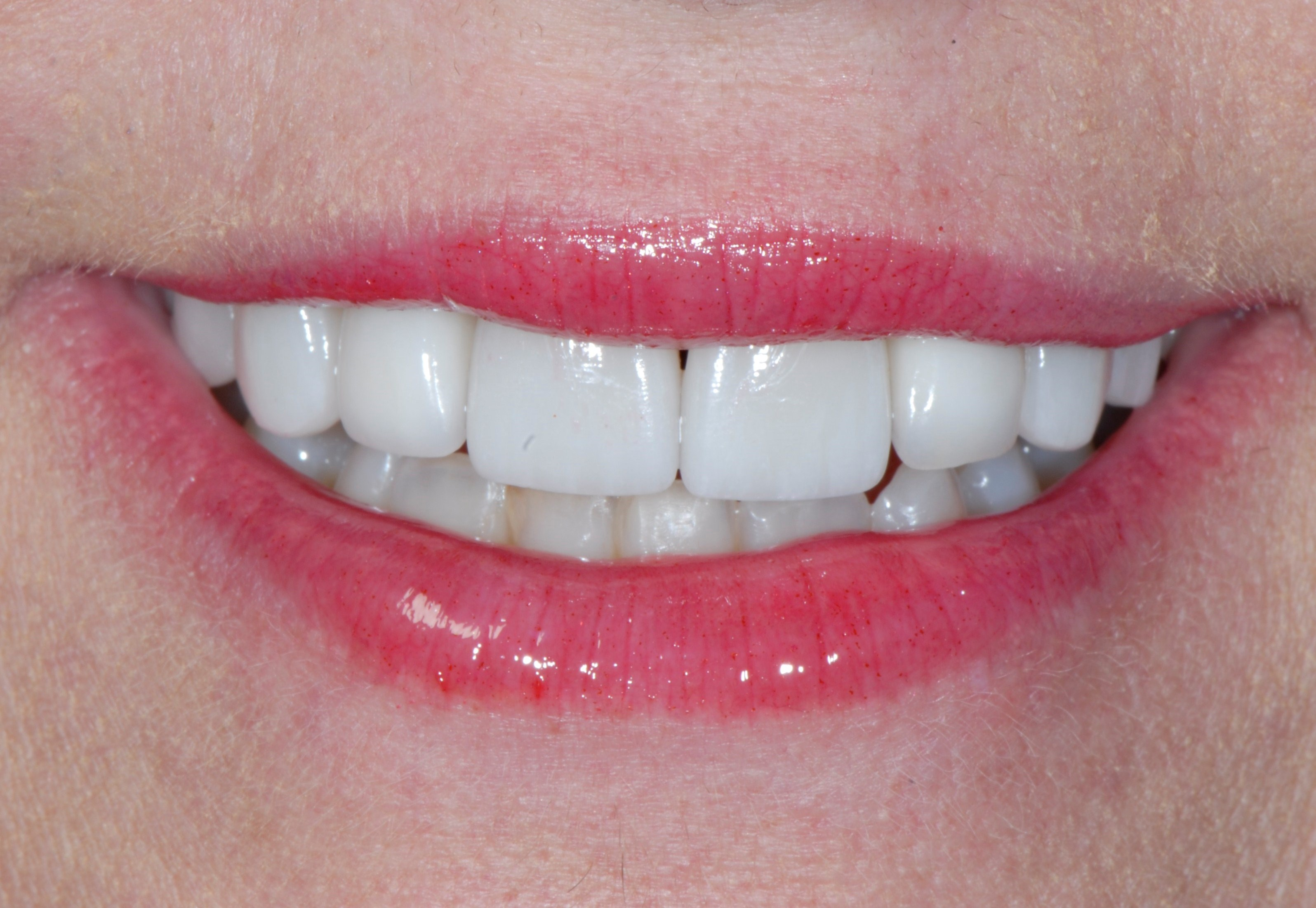 Smile Makeover in Atlanta After