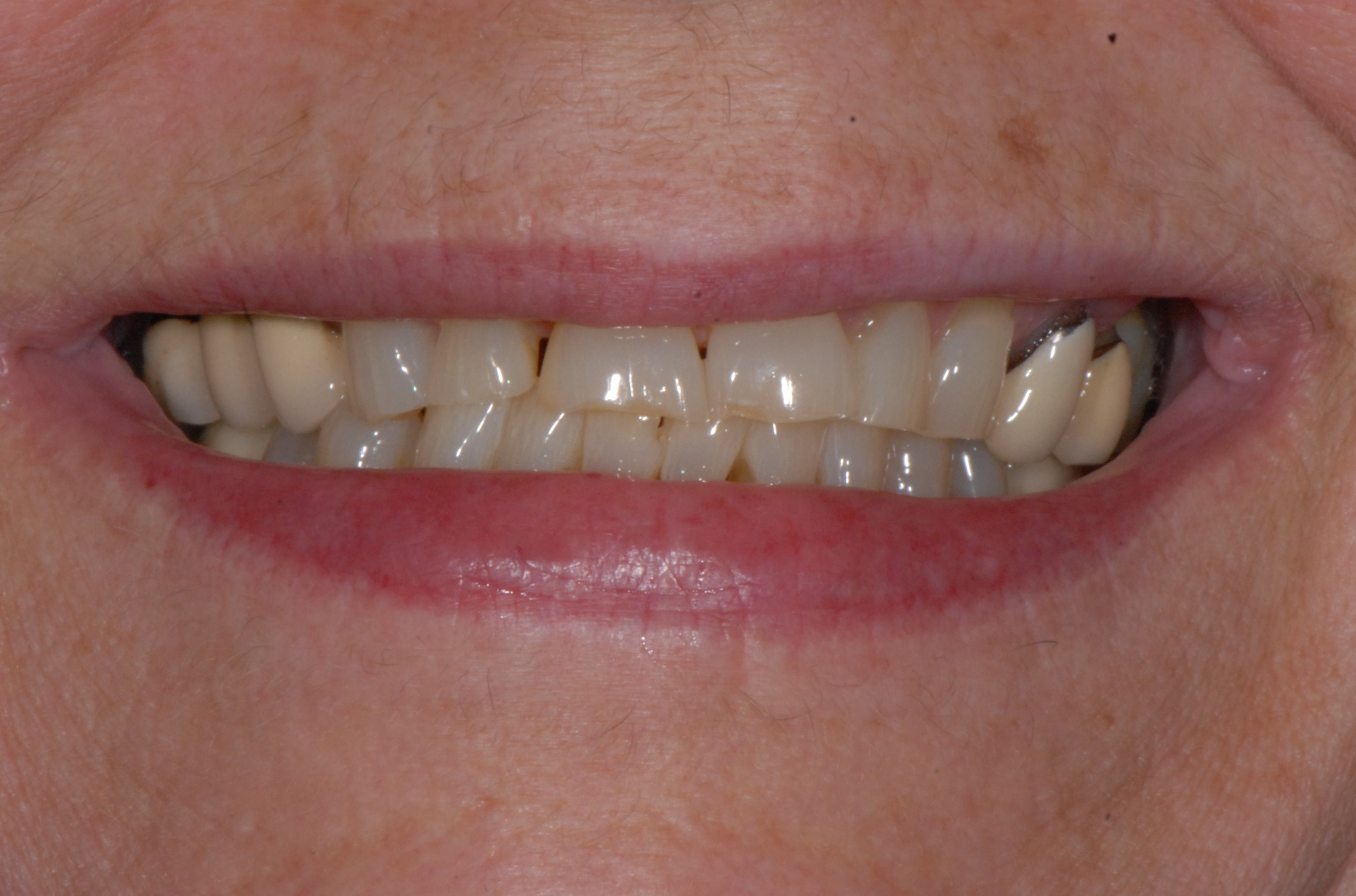 Smile Makeover in Atlanta Before