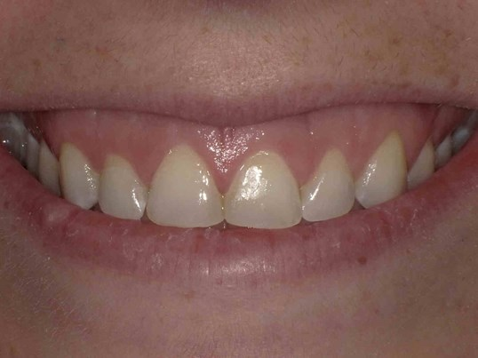 Botox for Gummy Smile Before