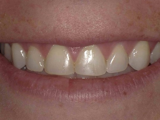 Botox for Gummy Smile After