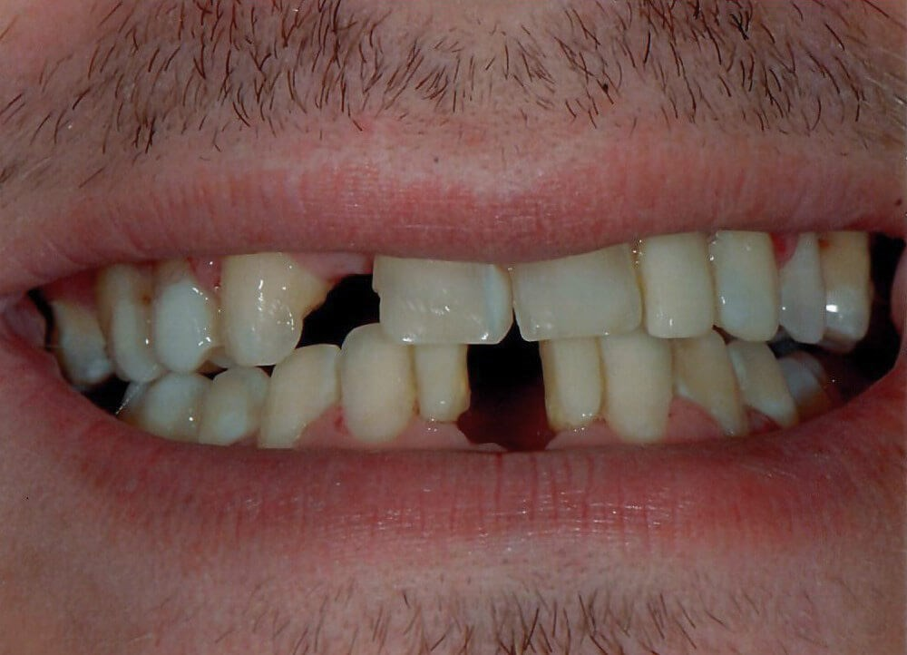 Dental Bridges in Atlanta, Ga Before