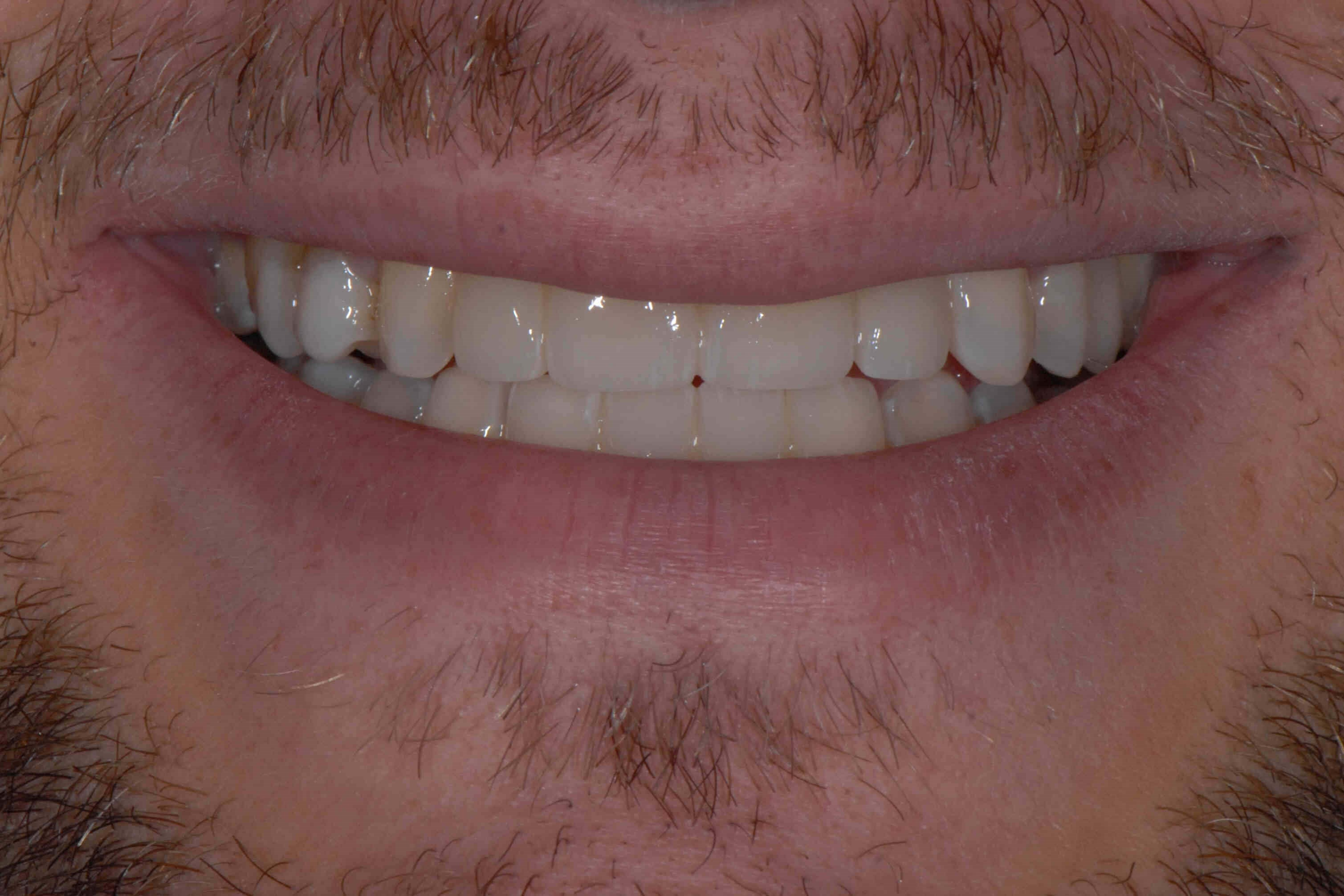 Dental Bridges in Atlanta, Ga After