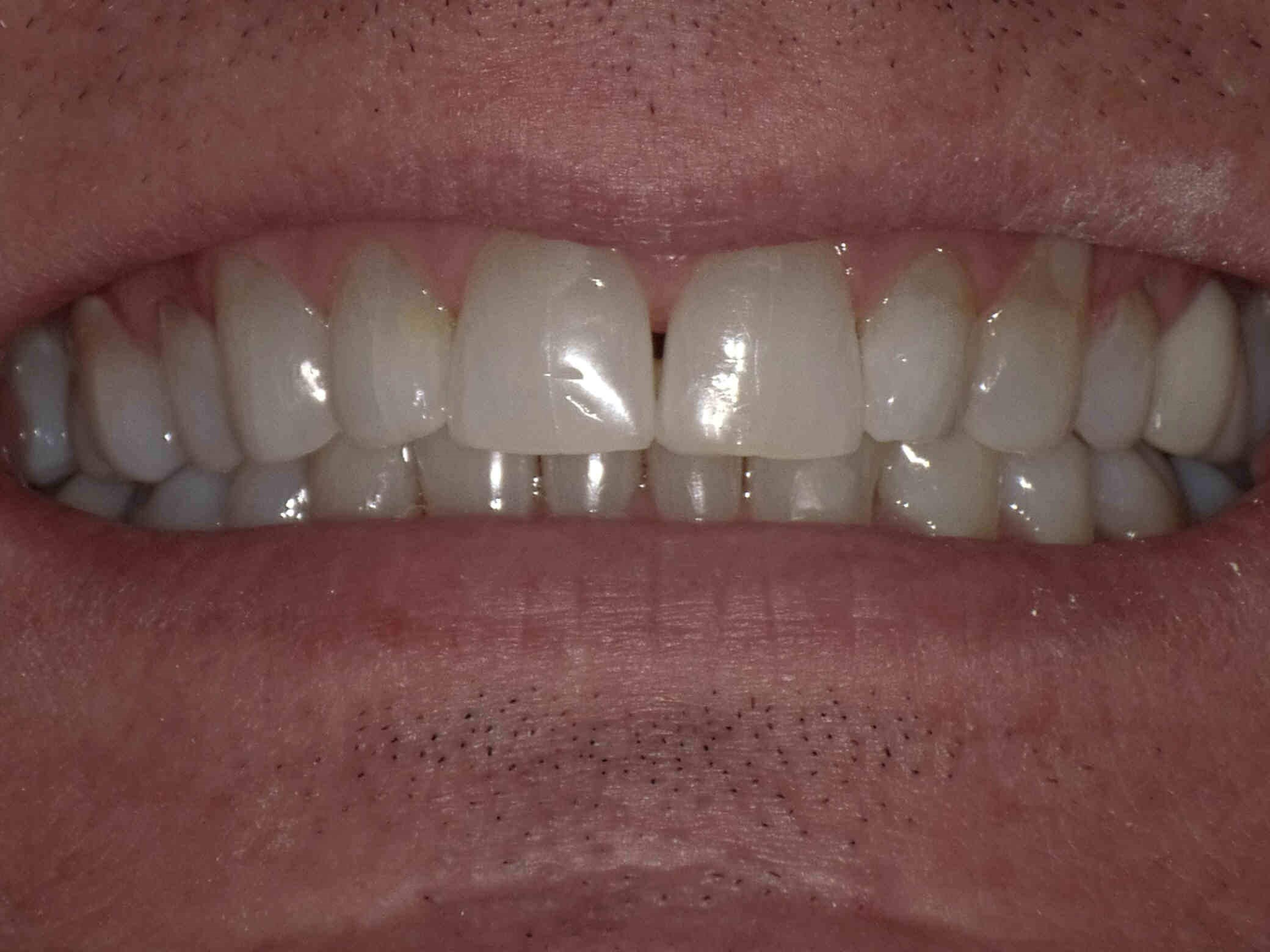 Clear Correct Orthodontics After
