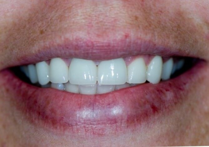 Porcelain Veneers in Atlanta After