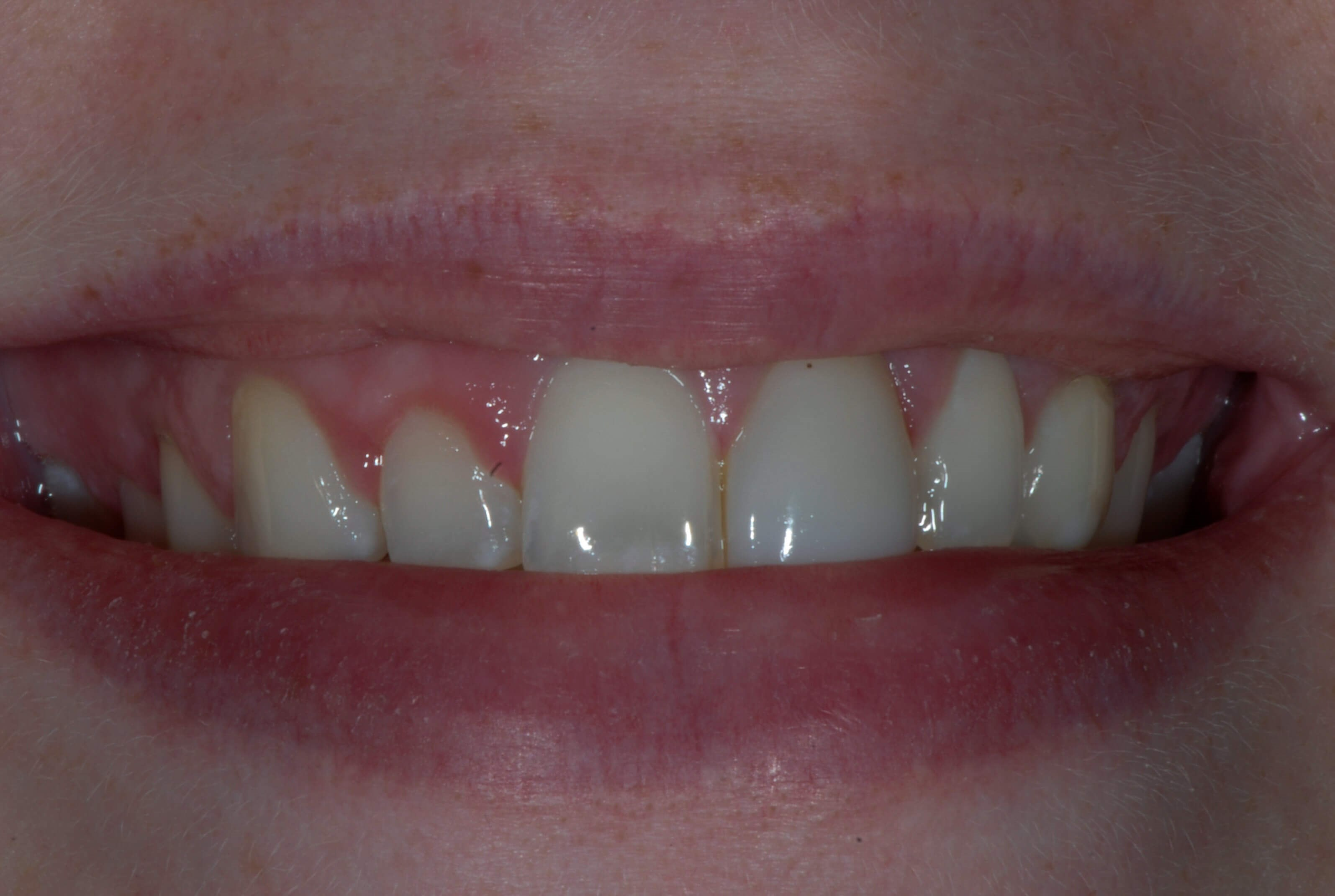 Gum Contouring and Bonding Before