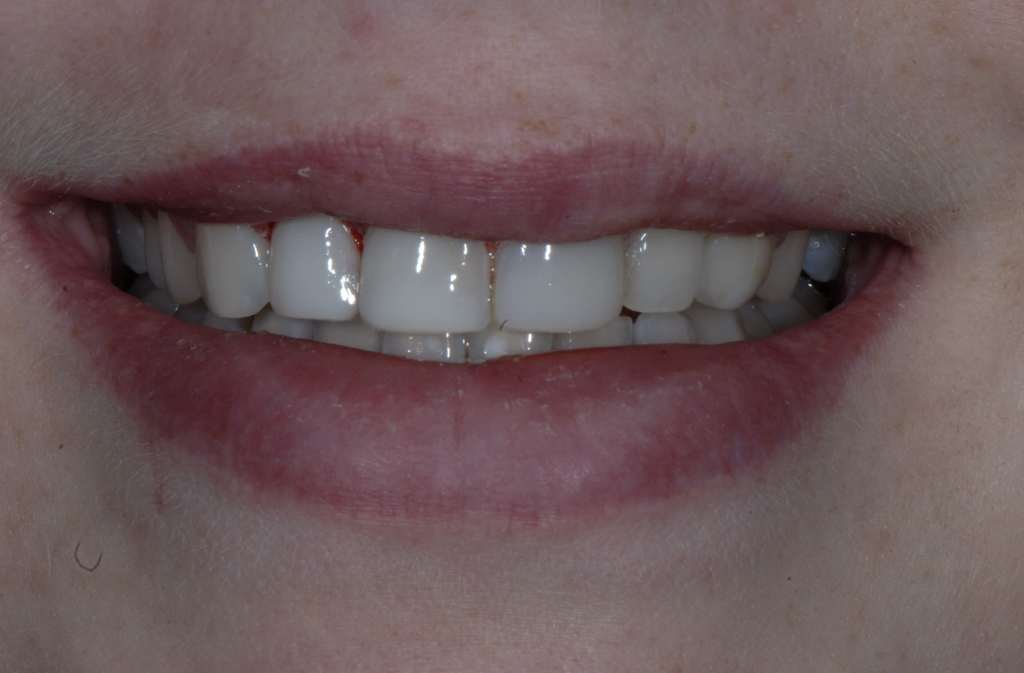 Gum Contouring and Bonding After