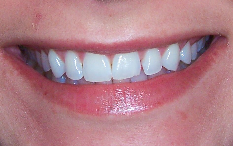 Porcelain Veneers in Atlanta Before