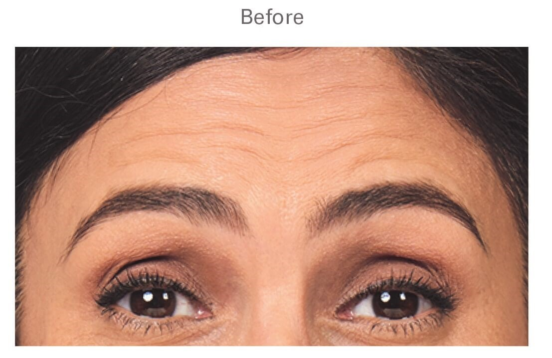 Botox in Sandy Springs, GA Before