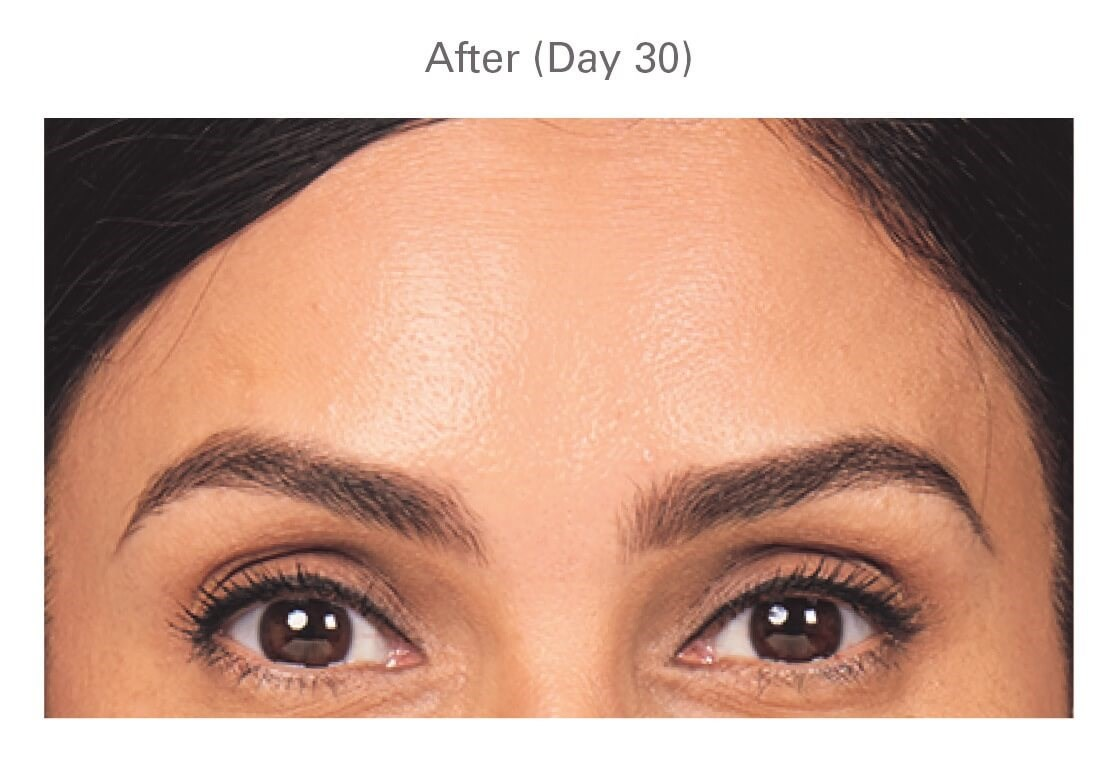 Botox in Sandy Springs, GA After