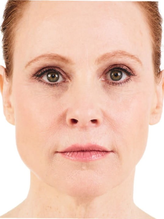 Juvederm in Sandy Springs, GA After