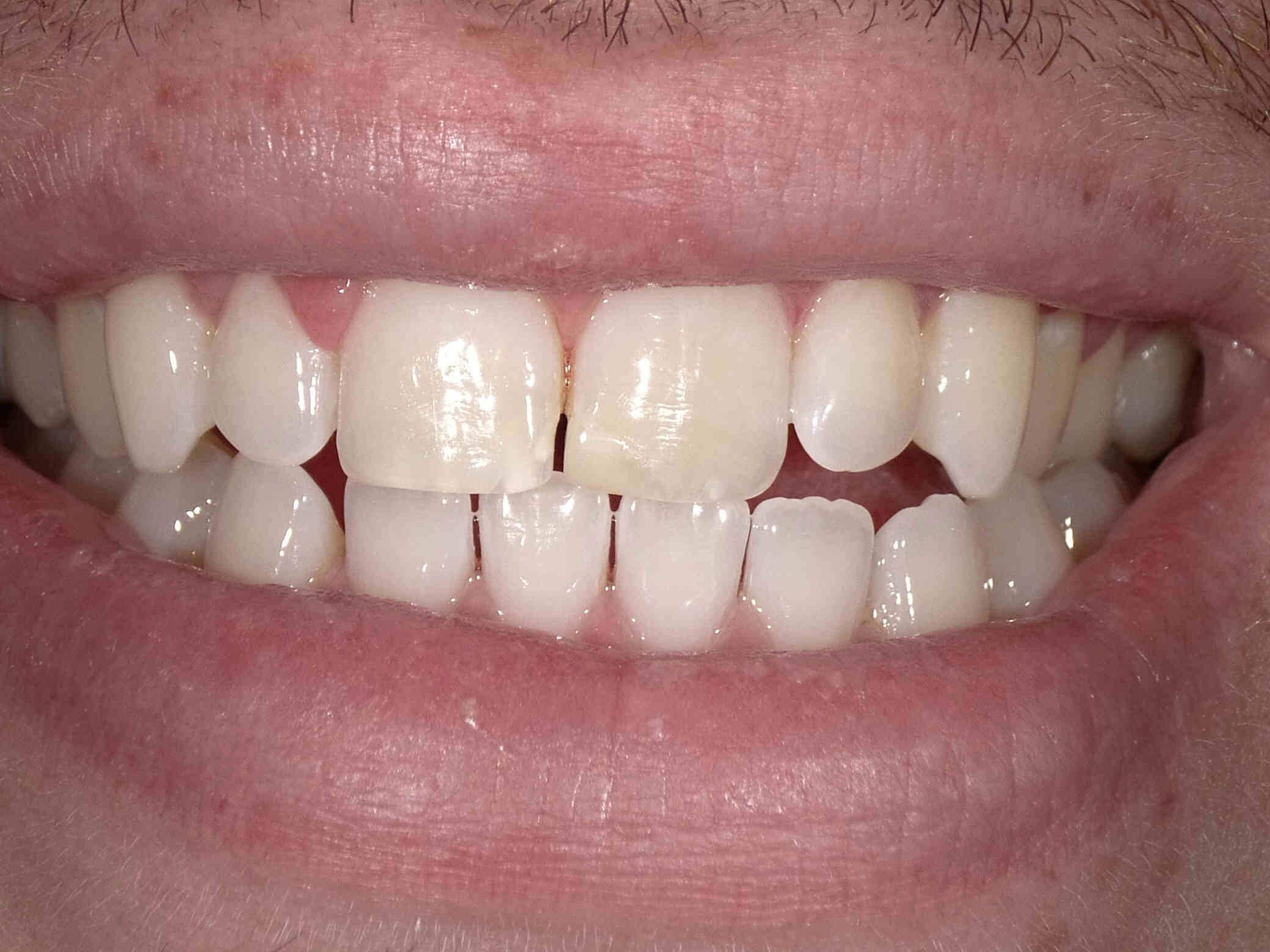 Zoom Whitening in Atlanta, GA After