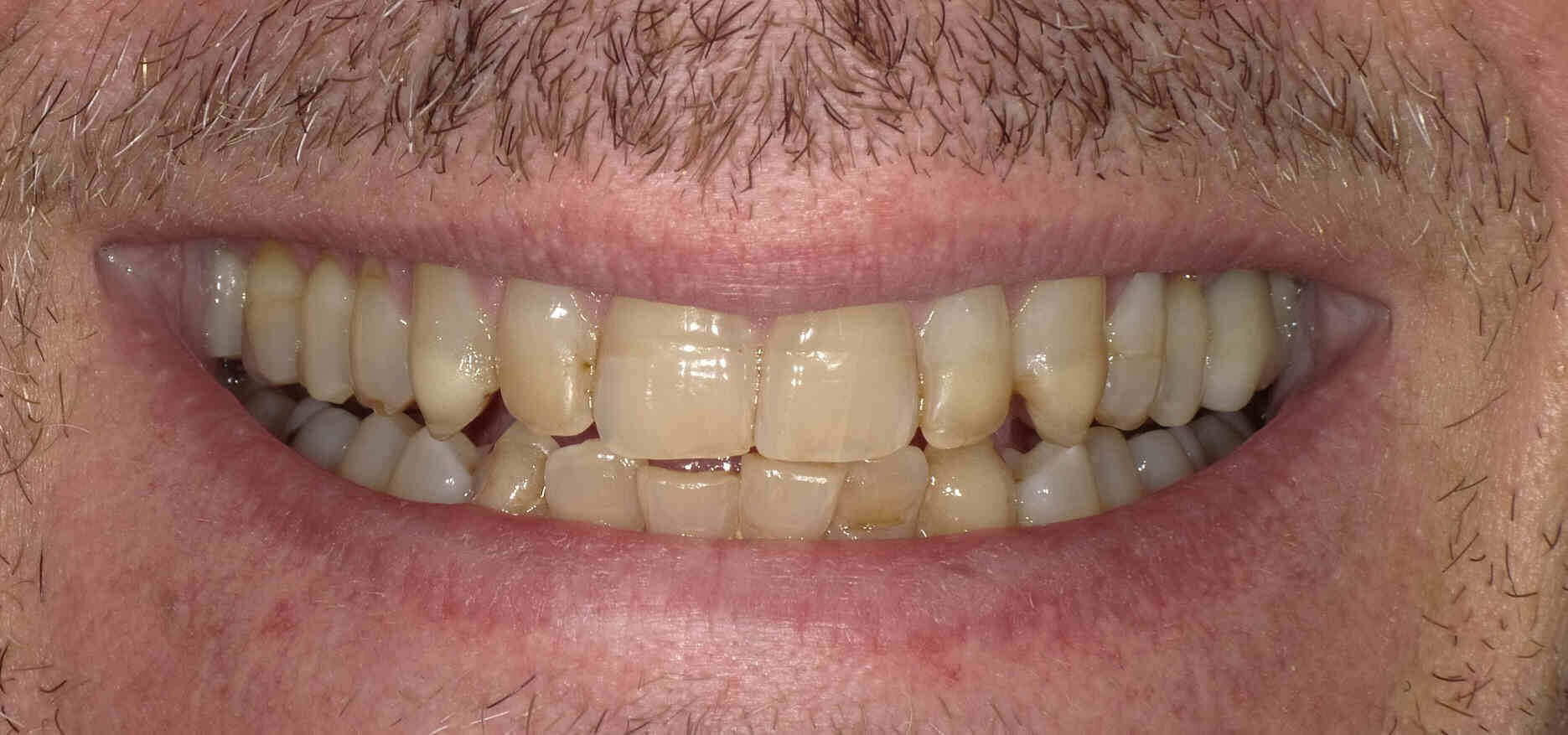Tooth Whitening in Atlanta, Ga Before
