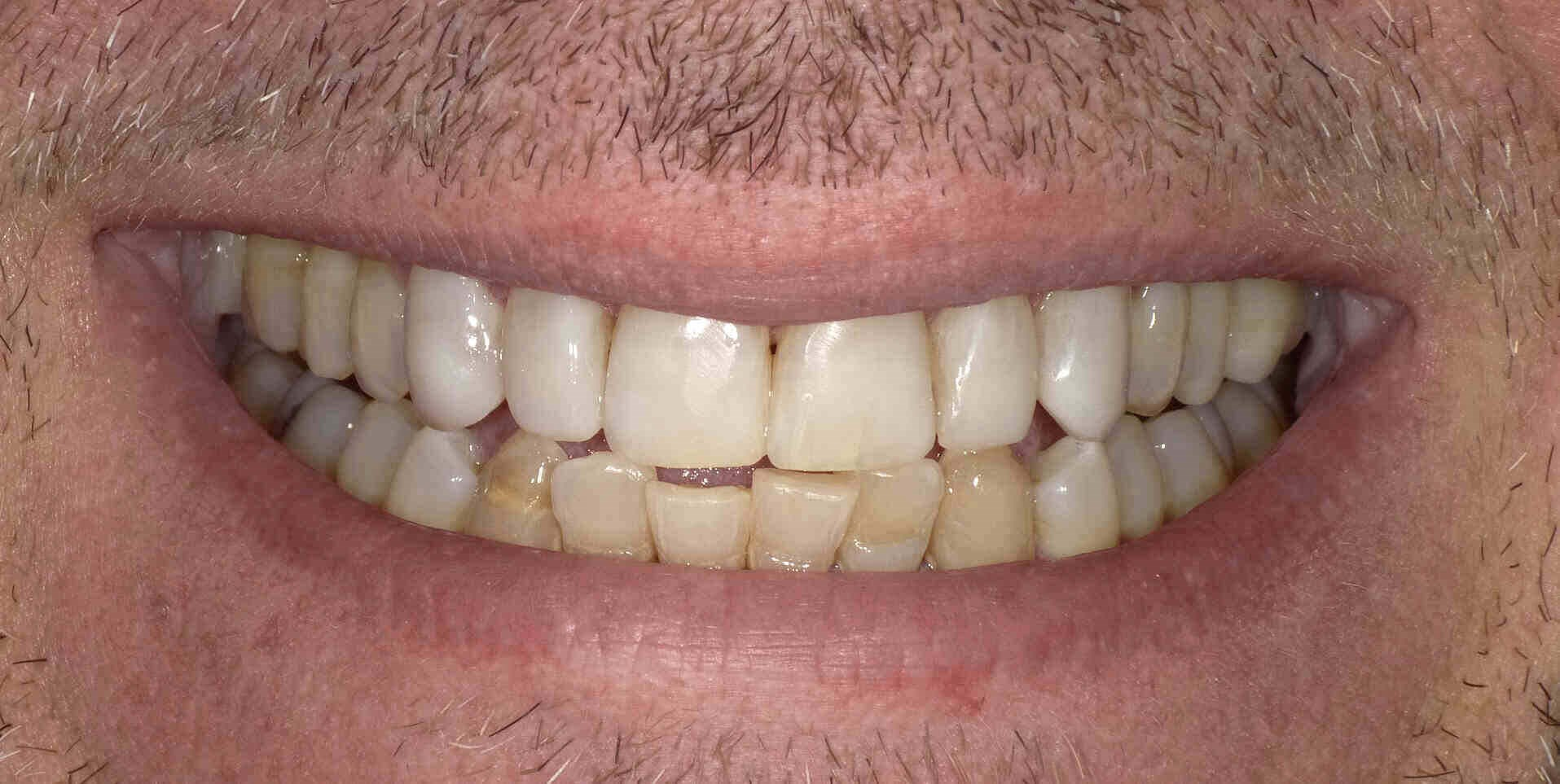 Tooth Whitening in Atlanta, Ga After