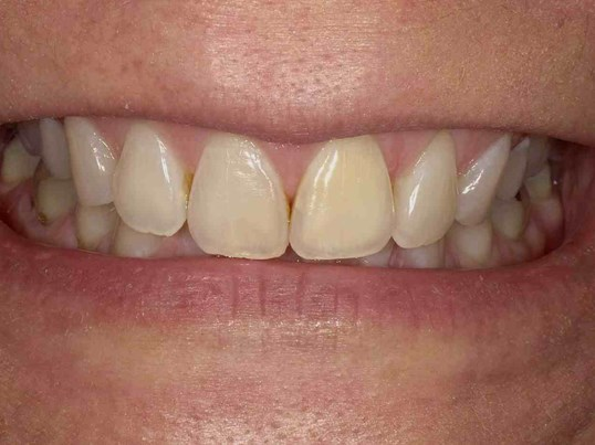 Zoom Whitening in Atlanta, GA Before