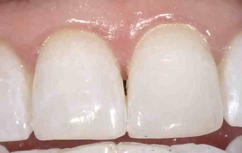 Tooth Repair in Sandy Springs After