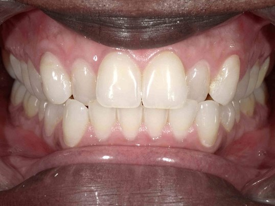 Teeth Whitening in Atlanta, GA Before