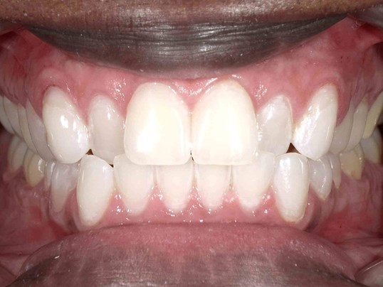Teeth Whitening in Atlanta, GA After